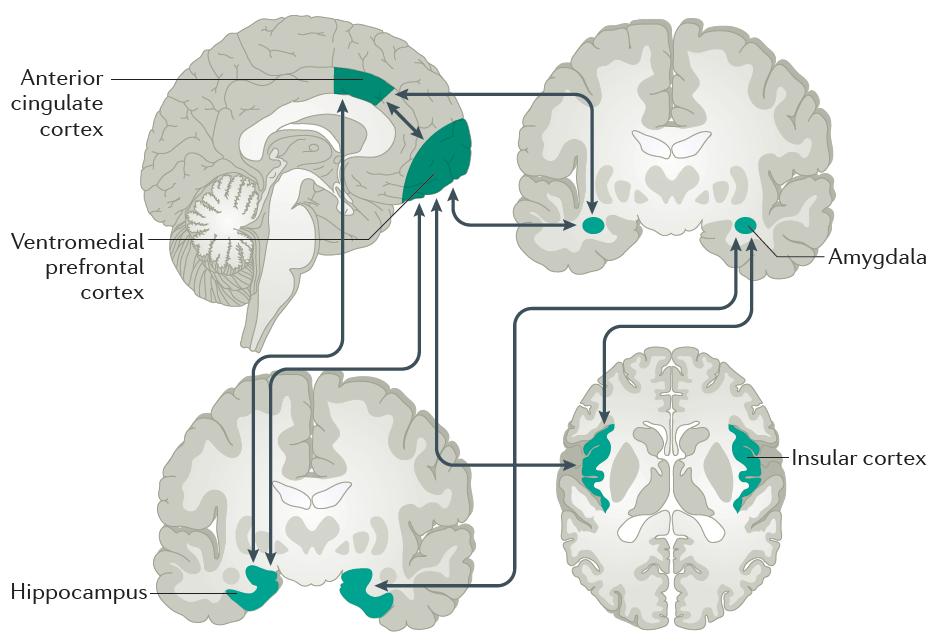 Neuroimagen. Articulo sobre la Ansiedad Escuela de Salud Integrativa