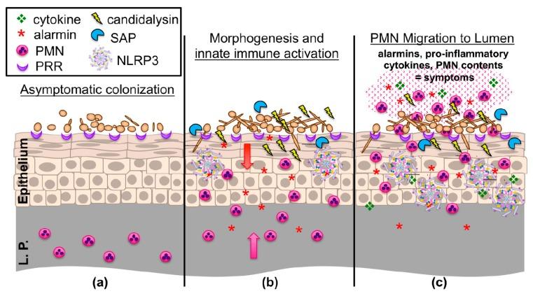 Un modelo de trabajo actualizado de la inmunopatogénesis de la vaginitis por C. albicans